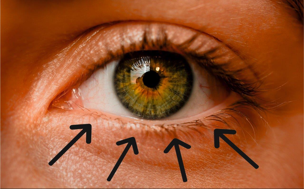 Anwendung der Lidlotion am Auge