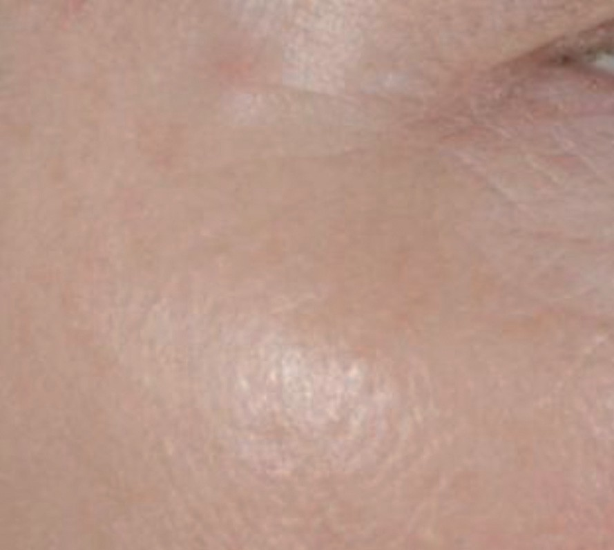 Fig. 2b: After the IPL/boswellia treatment